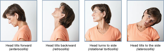 Types of head movement with cervical dystonia