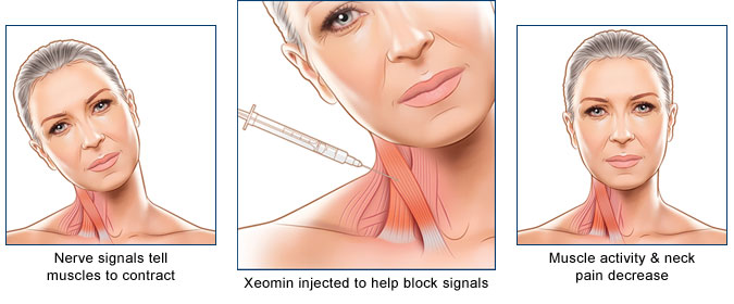 How Xeomin works to relieve muscle pain and stiffness in neck and shoulders