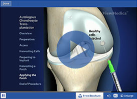 Innovative Ways to Repair Cartilage Damage Video