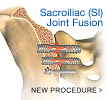 We offer the latest procedure in SI Joint Fusion