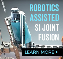 SI Joint Fusion using Mazor Robotics Renaissance Guidance System