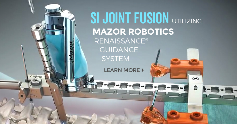 Now Offering SI Joint Fusion using Mazor Robotics Renaissance Guidance System